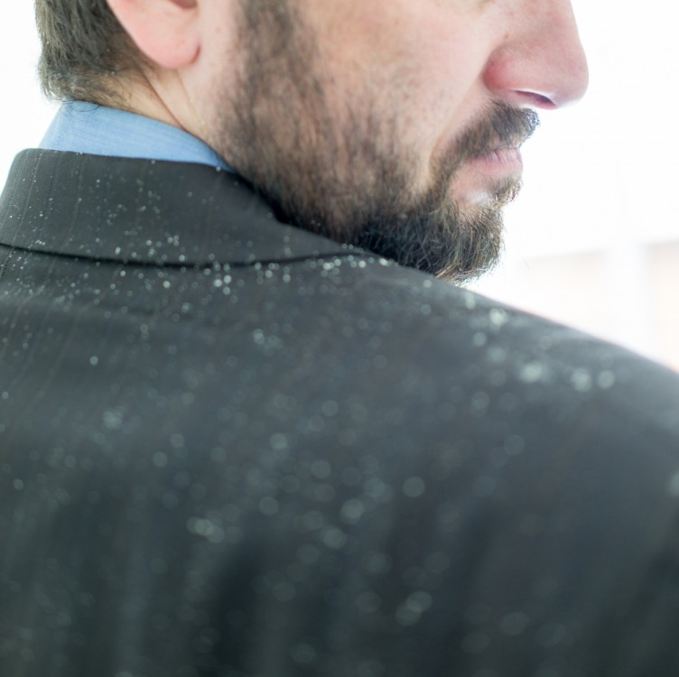 Business man with dandruff issues.