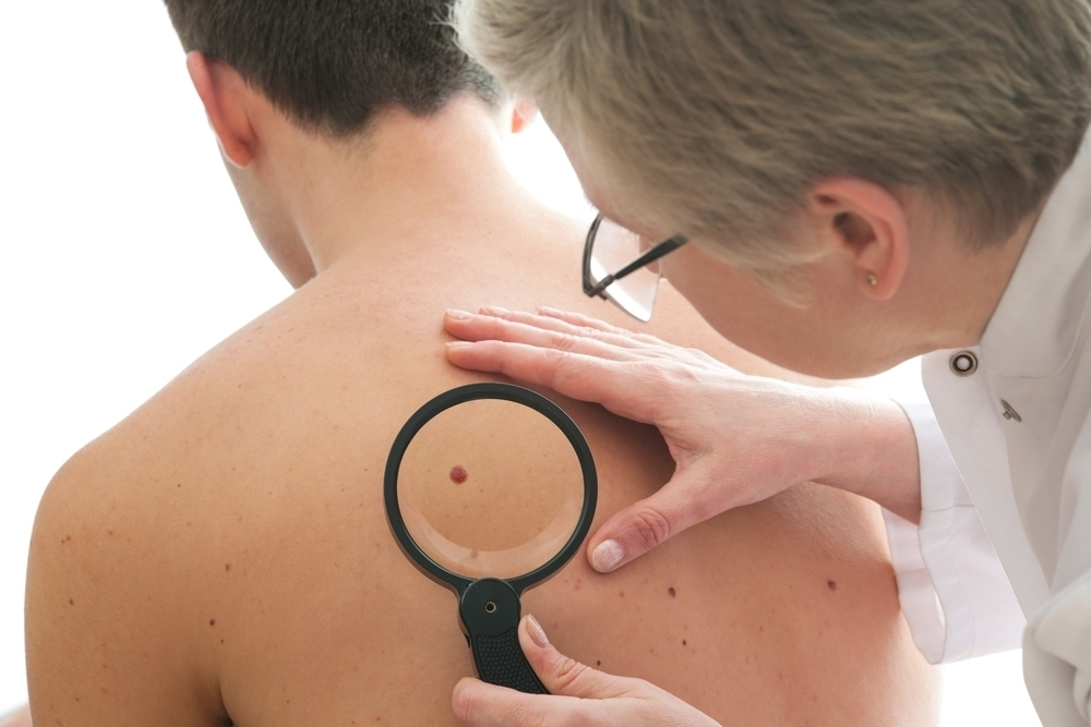 Man getting his skin examined for skin cancer.
