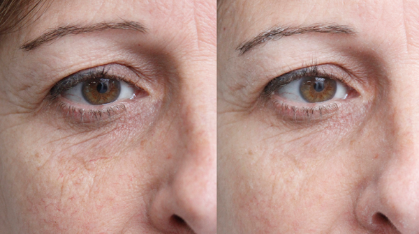 Closeup of eye area before and after facial treatment