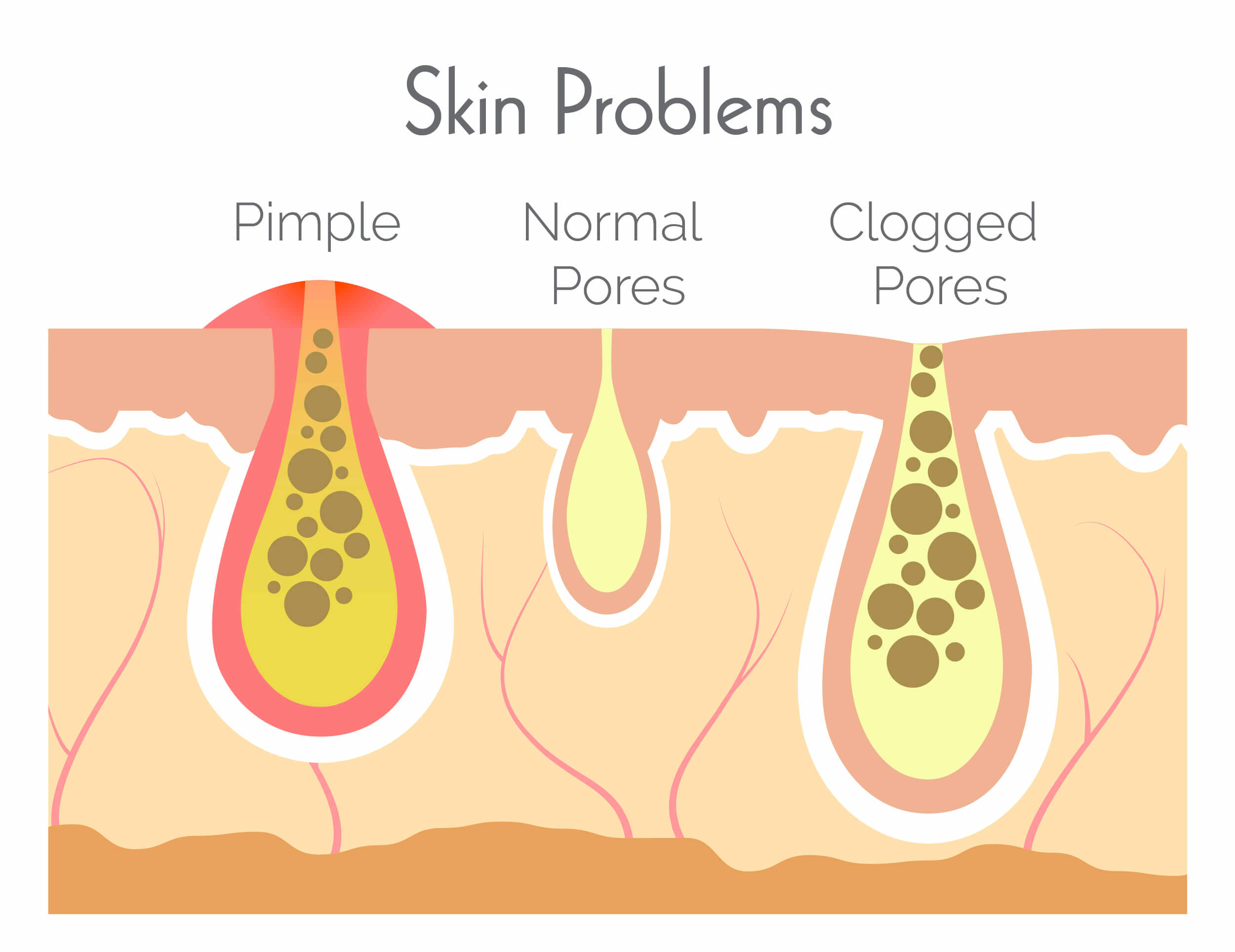 Infographic on skin problems and clogged pores