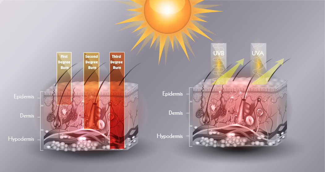 Artist illustration of UV rays penetrating layers of the skin