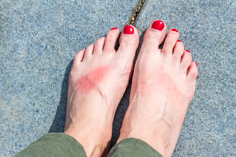 Heat rash on woman's feet